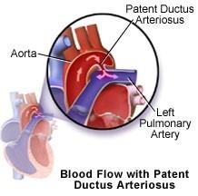 Patent_Ductus_Artery Открытый артериальный проток и ДМЖП