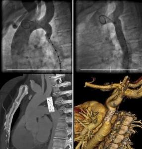 aortic-286x300 Лечение коарктации аорты у детей в Израиле