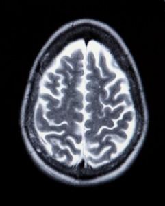 cranio-241x300 Краниотомия. Лечение в клинике Шнайдер