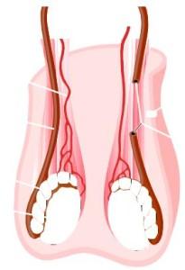 orolog-205x300 Лечение варикоцеле
