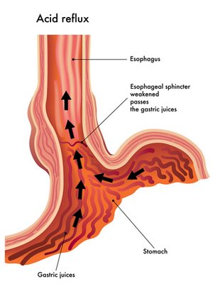 Рефлюкс желудка у детей | Клиника Шнайдер