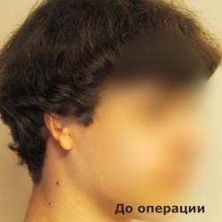 2149706781 Микротия у детей. Реконструкция уха с помощью имплантата Medpor.
